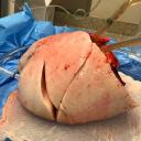 XVIVO Perfusion AB logo